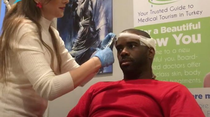 Afro Hair Transplant In Istanbul: Arrived From Philadelphia For 3 Days Hair Transplant Magic