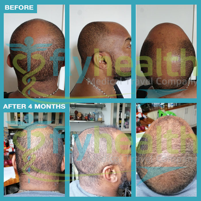before-after-black-hair-transplant-08