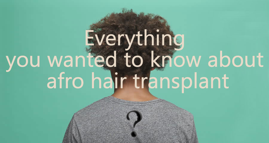 Everything you wanted to know about afro hair transplant