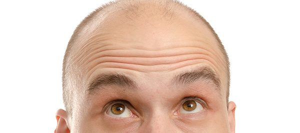 direct-hair-transplantation