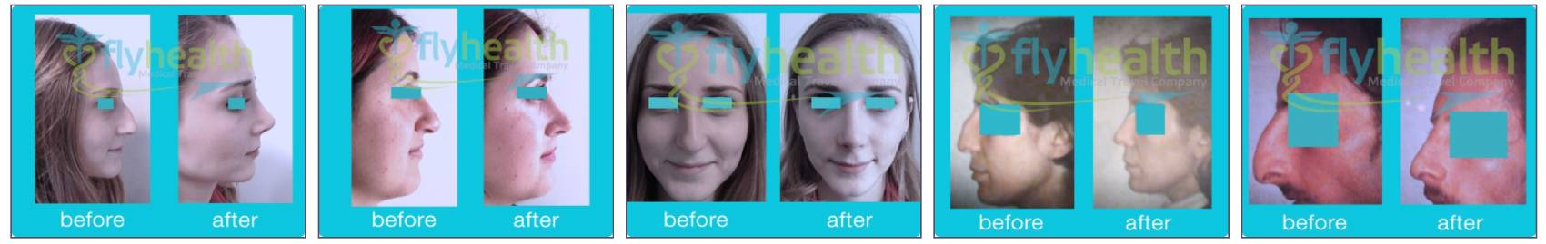 Nose Job Turkey Before After