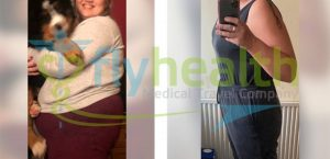 Before After Gastric Sleeve