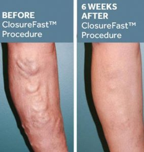 Before After Radiofrequency Ablation